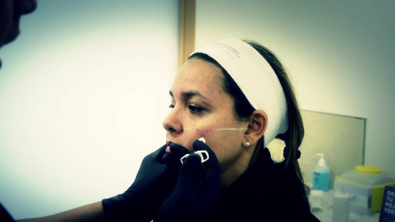 Dr. Alejandro Acuña | Rejuvenecimiento Facial con Técnica Palo de ...