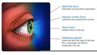 Assessing Dry Eye