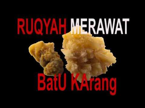 Rukyah Efektif Bagi Merawat dan Memecah Batu Karang/Ruqyah to Break and Heal Kidney Stone