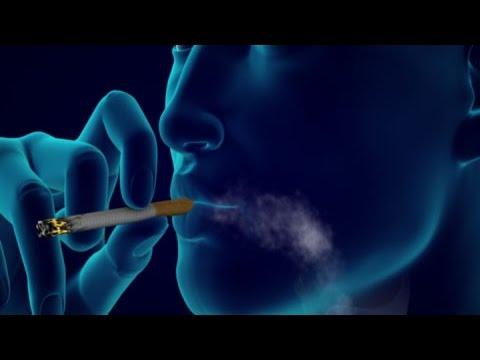Anti-smoking Ad: Smoking Causes Emphysema, Lung Cancer