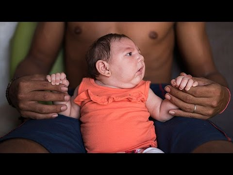 Should You Be Worried About The Zika Virus?