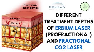 The Different Treatment Depths of ProFractional (Erbium) Laser and Fractional CO2 Laser