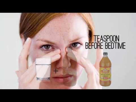 20-unique-apple-cider-vinegar-uses-and-benefits