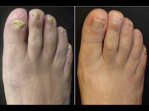 Toenail Fungus Treatment *Listerine Home Cure*