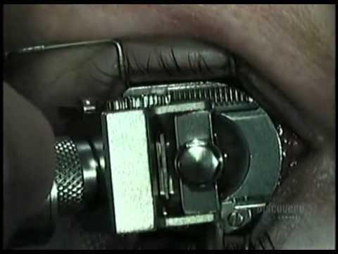 Laser Eye Surgery Dublin