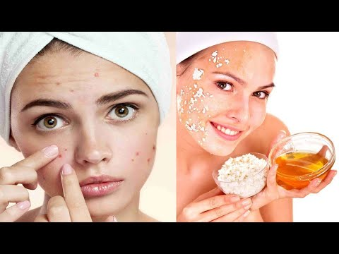 13-powerful-home-remedies-for-acne-!!-for-healthy-life