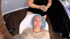 What to expect IPL Photofacial Treatment