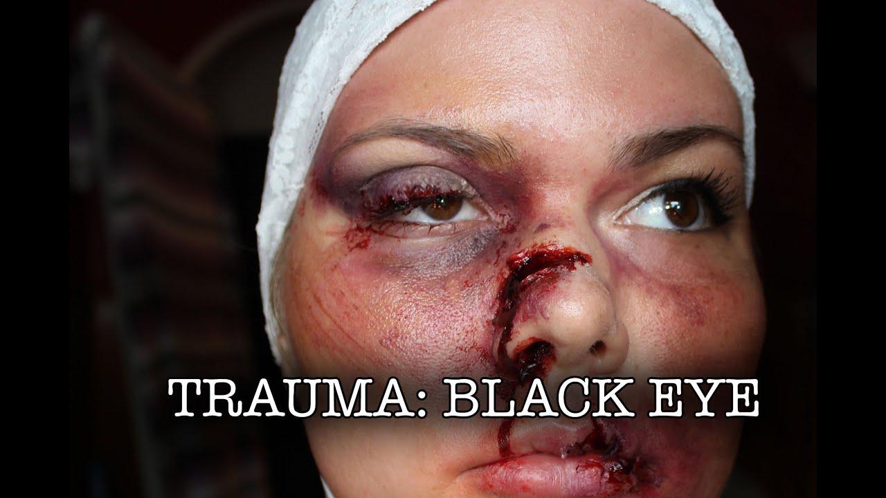 Swollen Black Eye Pictures