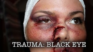 Trauma: Black Eye Thumbnail