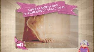 Cors et durillons : 3 remèdes de grand mère