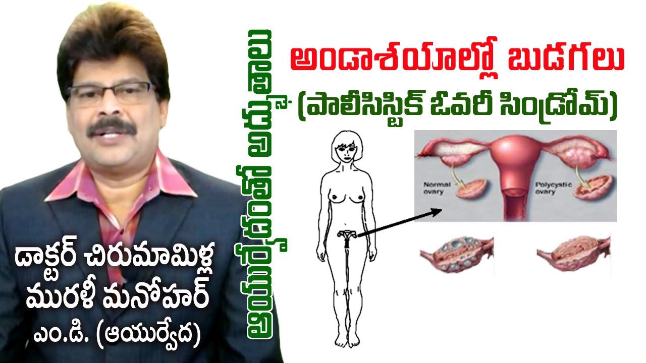 Poly Cystic Ovary Disease | PCOS | Prof  Dr  Murali Manohar Chirumamilla,  M D  (Ayurveda)