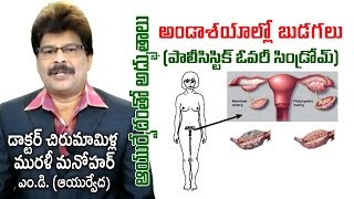 Poly Cystic Ovary Disease | PCOS | Prof. Dr. Murali Manohar Chirumamilla, M.D. (Ayurveda)