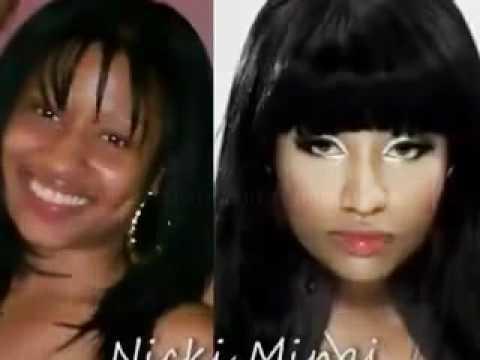 Nicki Minaj Before Amp After Plastic Surgery Must Watch