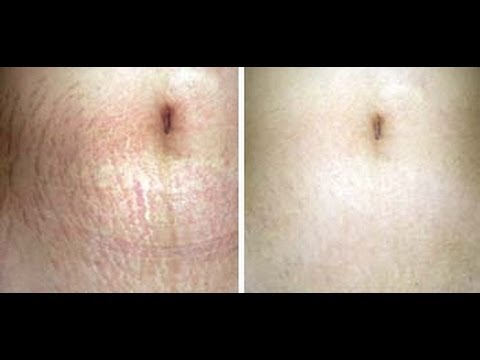 Get Rid Of Stretch Marks How To Get Rid Of Stretch Marks