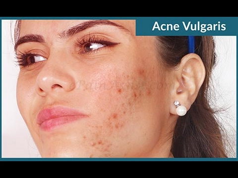 Development features and treatment of acne vulgaris