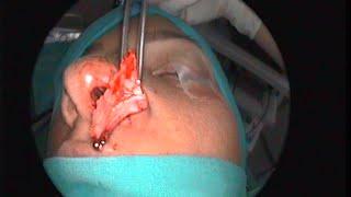 Deviated Septum - Endoscopic Septoplasty (Επεμβαση διάφραγμα – Ενδοσκοπική διαφραγματοπλαστική)