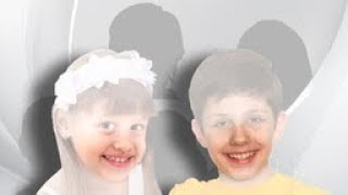 Volkskrankheit Kreidezähne – was verursacht poröse Zähne bei Kindern?