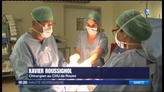 La prise en charge de l'hallux valgus au CHU-Hôpitaux de Rouen