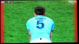 Bristol City penalty 0-1 vs Man City