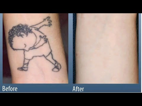 Tattoo Removal || Laser/Surgery/Home Remedy | 3N vlogs - YouTube
