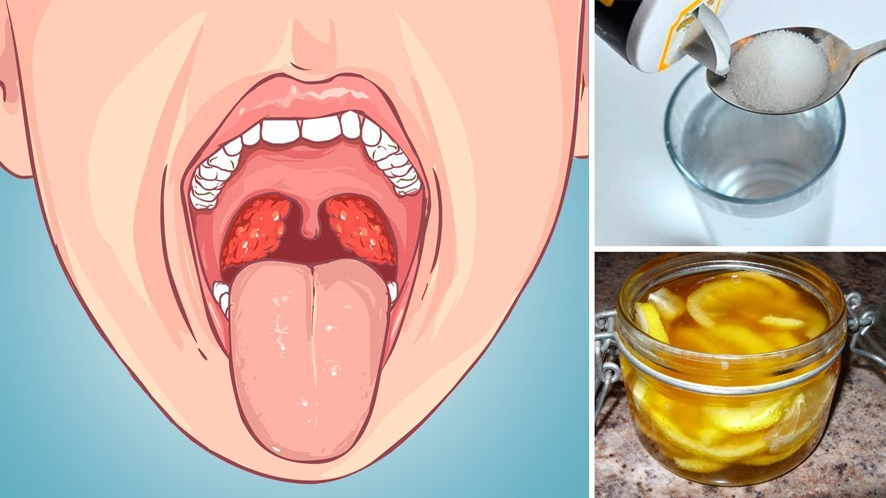 Strep throat home treatments #9