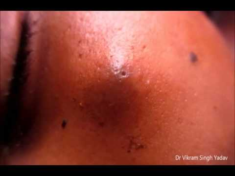 what is a cyst - youtube, Sphenoid