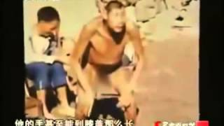 Невероятно!!! Гибрид человека и обезьяны обнаружили в Китае