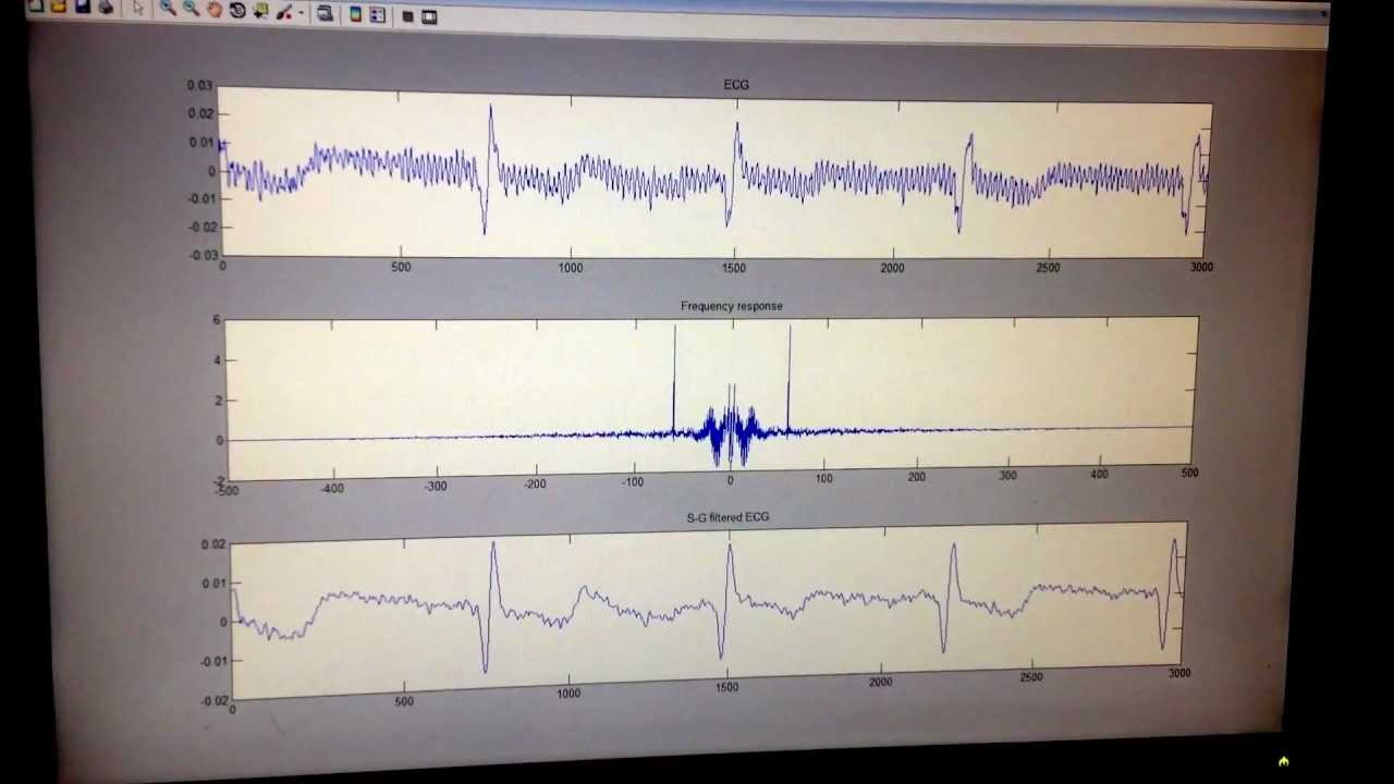 ECG signal filtering and noise reduction with MATLAB (real-time result  only  no code)