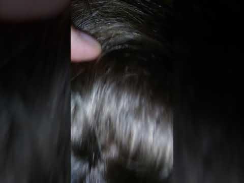 Почему когда болеешь чешется голова