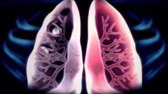 Tuberkuloosi - läpivalaisu
