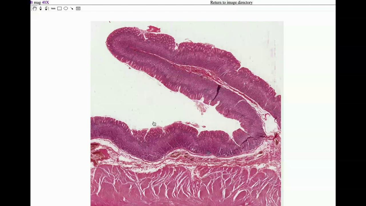 az aszcariasis következményei egy embernek staphylococcus kenet van 10