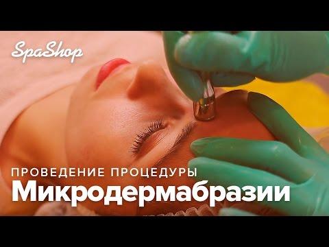Микродермабразия: проведение процедуры / Venko.com.ua