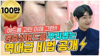 """""""여드름 피부 극복기!""""✨ l [역대…"""