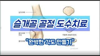 물리치료사 박세준 - 무릎 슬개골 골절 수술 후 도수치…