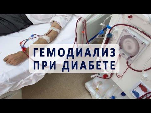 Диализ крови (гемодиализ) при сахарном диабете