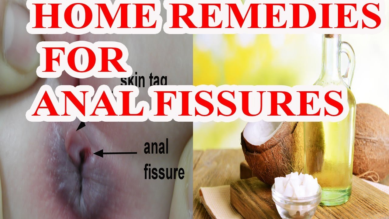 Home treatment of anal fissure