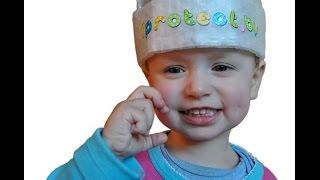 Травма головы у ребенка, «сотрясение мозга»   Доктор Комаровский