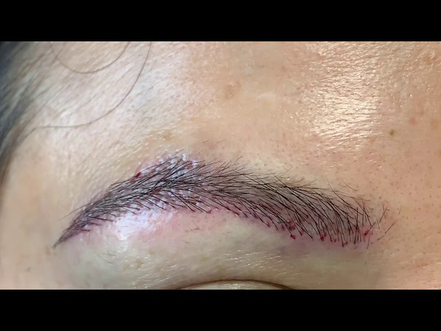 Dallas Ethnic Half Asian Overplucked Partial Eyebrow Transplant Immediately Post Close-Up