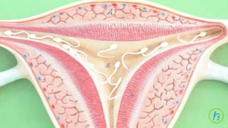What is Cervical dysplasia?