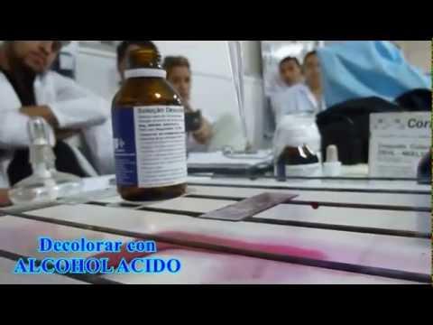 EN BUSCA DEL BAAR..... BACILO ACIDO ALCOHOL RESISTENTE