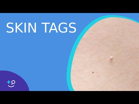 Skin Tags Daily Do's of Dermatology