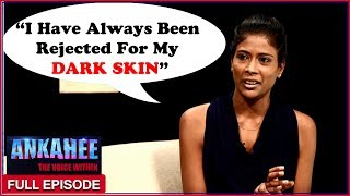 """""""I Have Always Been Rejected For My Dark Skin..."""