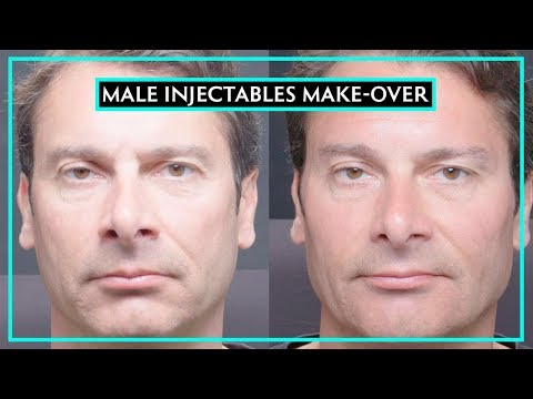 complete-injectables-make-over-on-a-man