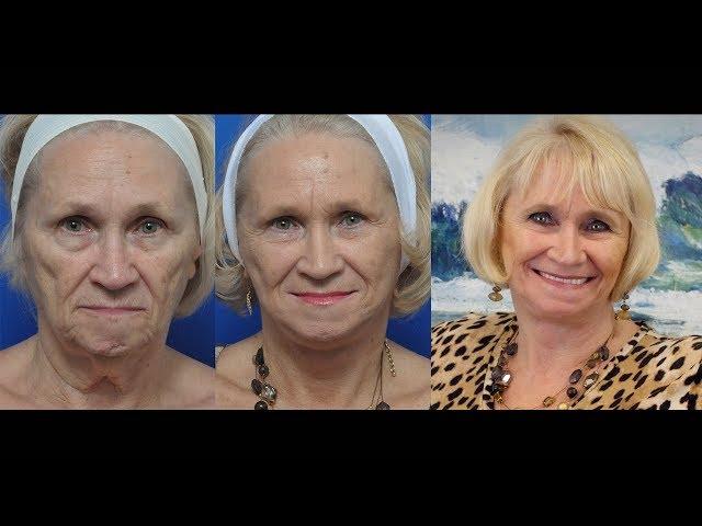 Darlene's Transformation Story