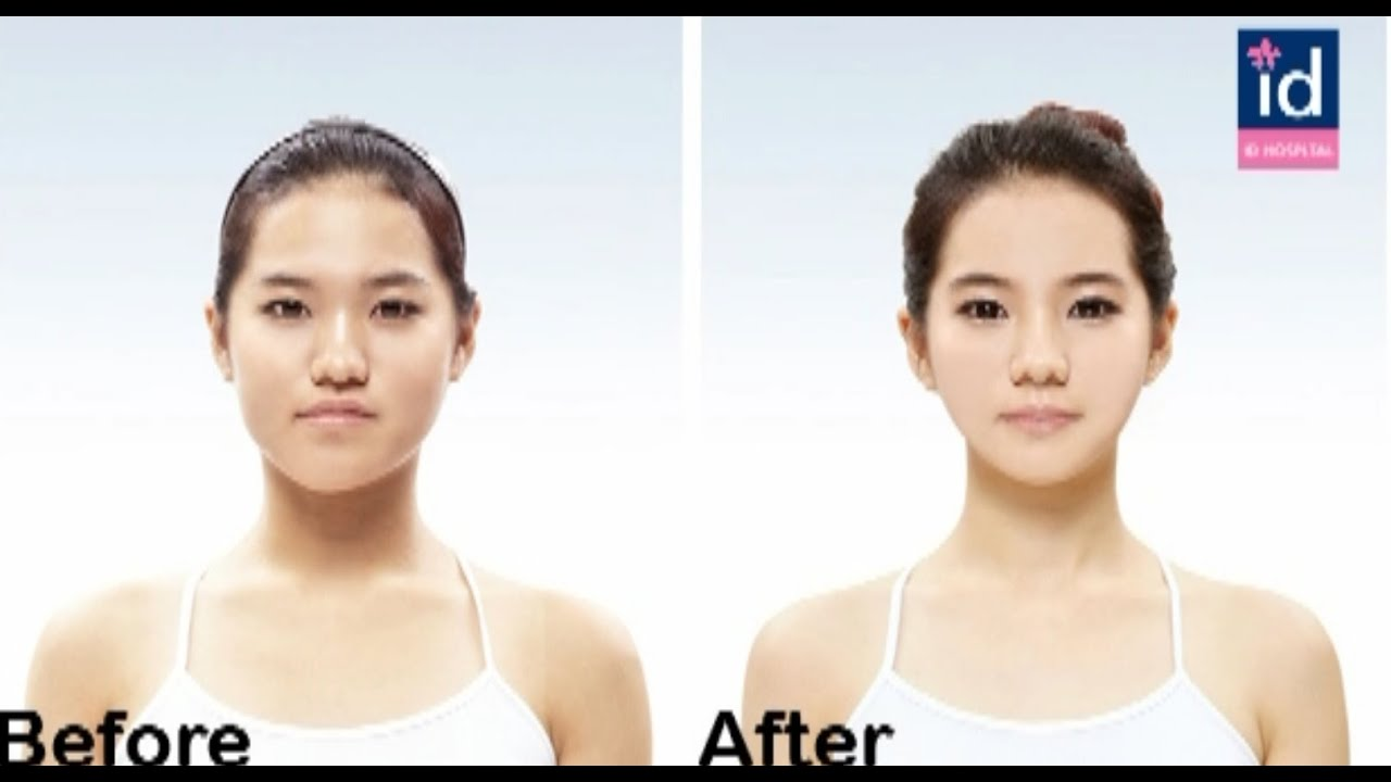 my double jaw surgery before and after (orthognathic surgery in korea ...