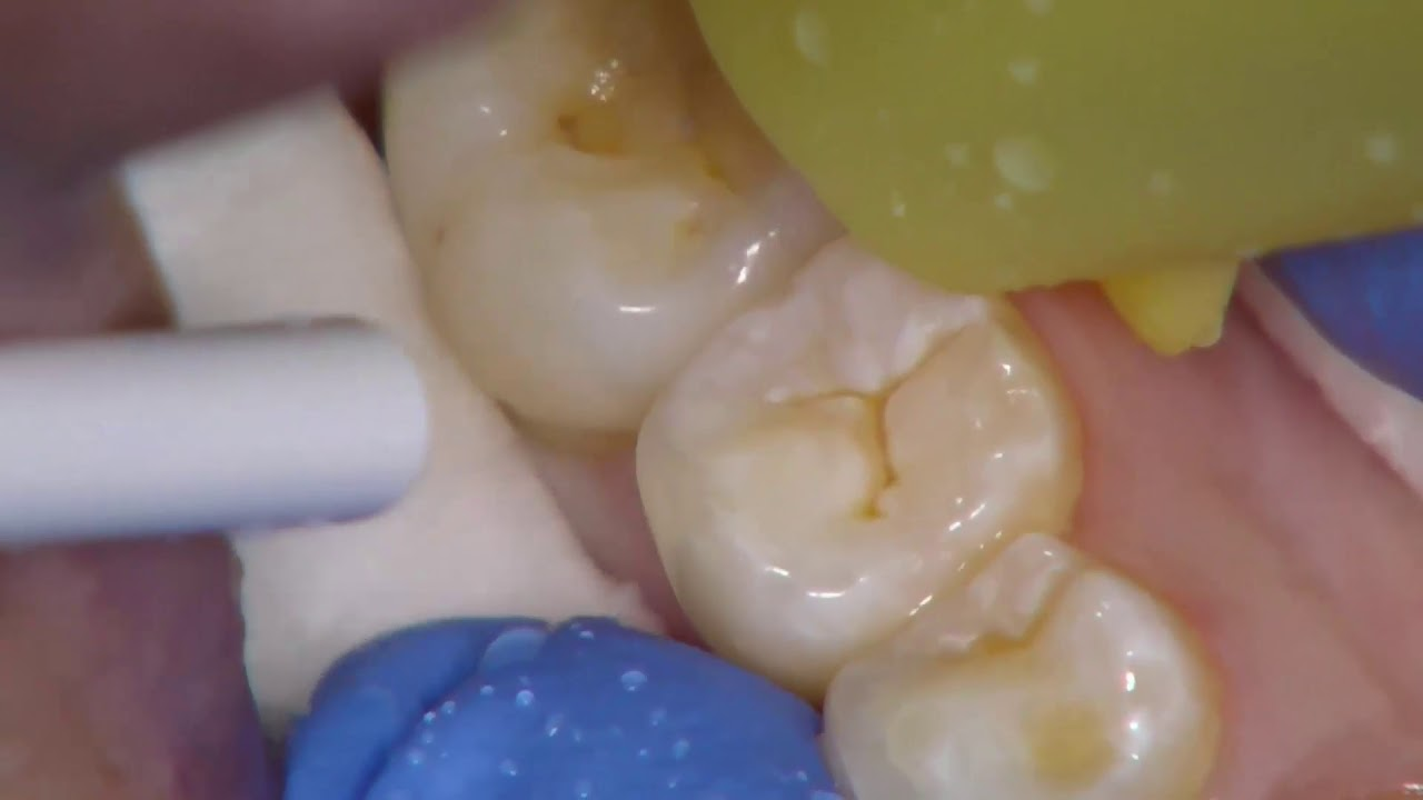 Clinical Demonstration of Resin Fissure Sealant Placement on tooth 45