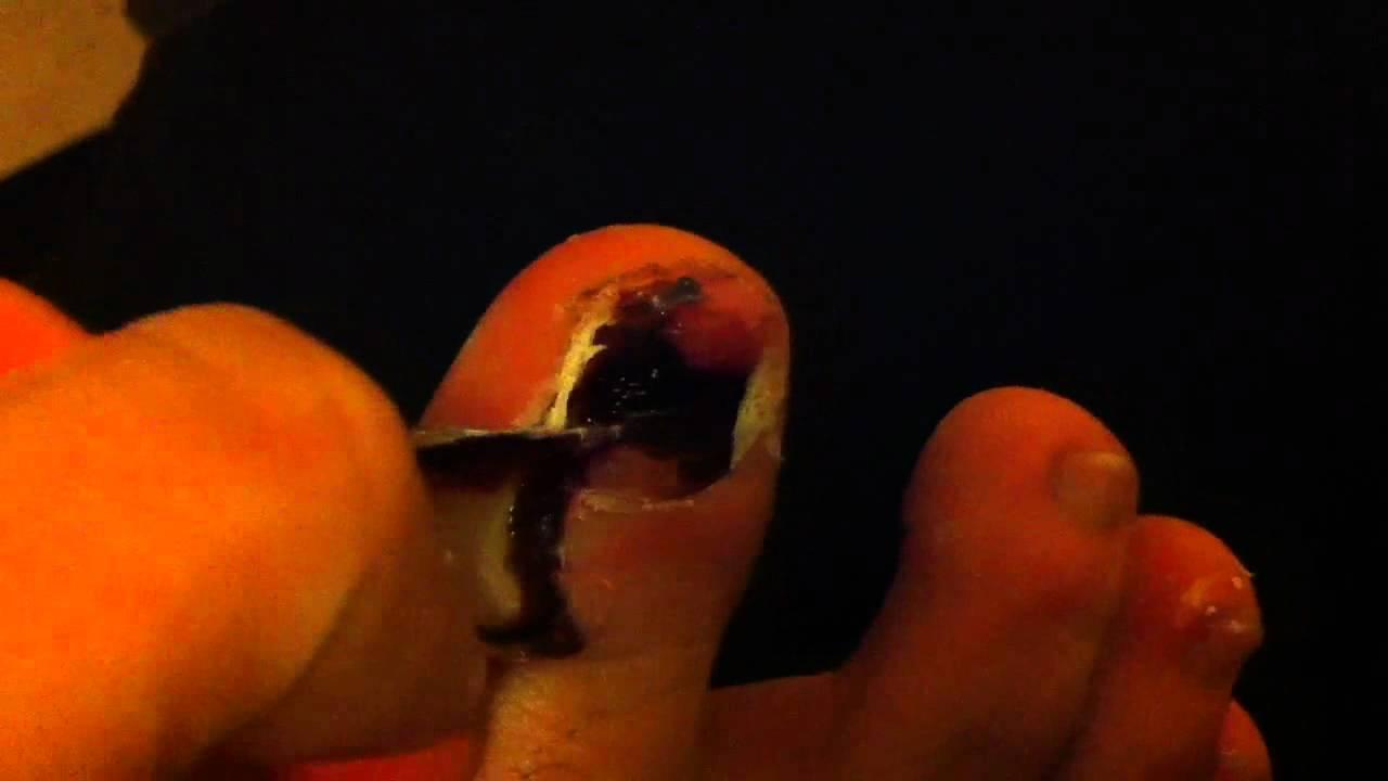Black toe nail falling off - YouTube