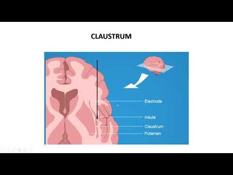 Anatomie Cerveau  : Noyaux Gris Centraux .