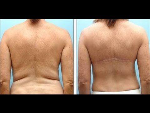 Fat Back Women 120