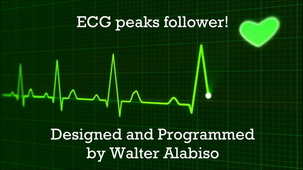 ecg peak detector matlab arduino project eng youtube rh youtube com Quasi Peak Detector Isolated Peak Detector